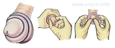 Вправление головки при парафимозе