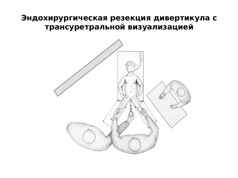 Реимплантация