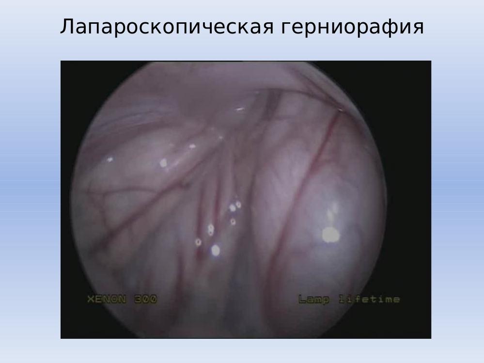 Коричневые ногти причина и лечение